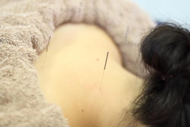 肩に鍼を打つ